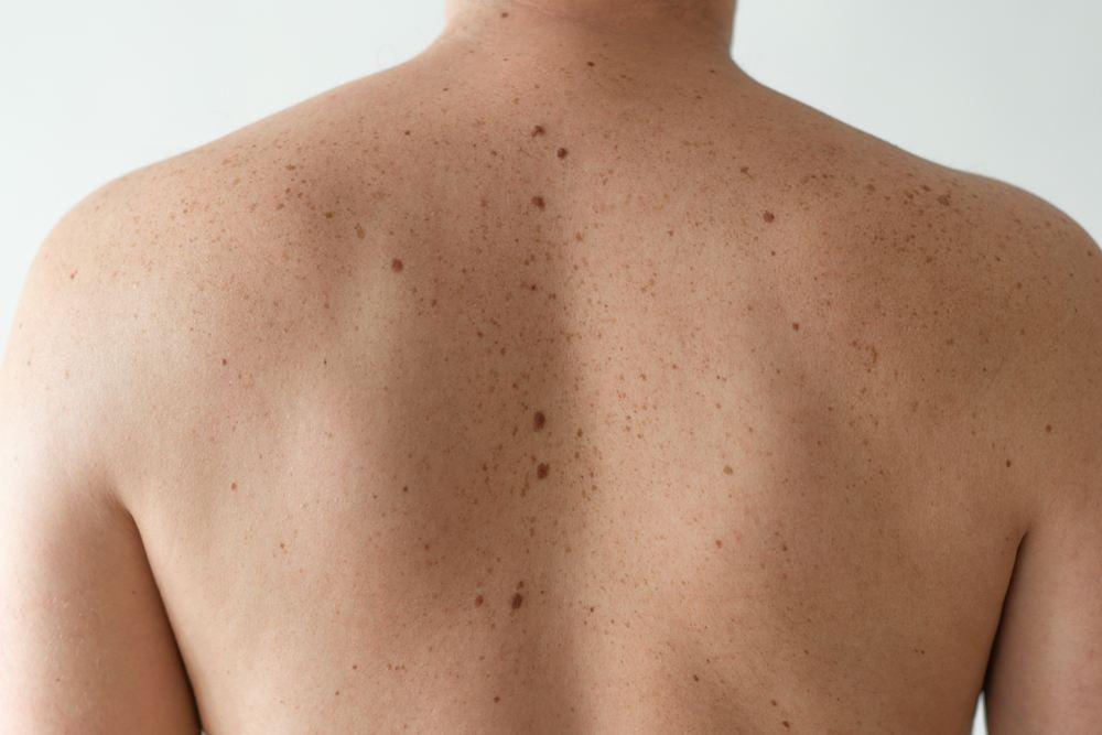 Madeži – ukras na koži ili znak potencijalne opasnosti?