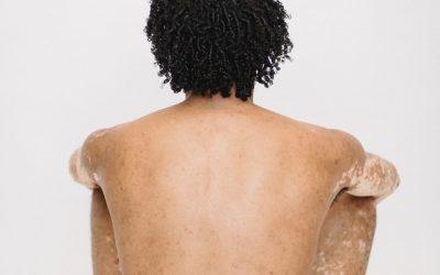 Psorijeza – Kako stati na kraj ovoj kožnoj bolesti?